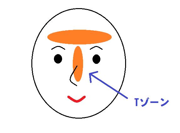 チアらんど きれいラボ キレイのこと★思春期ニキビ1